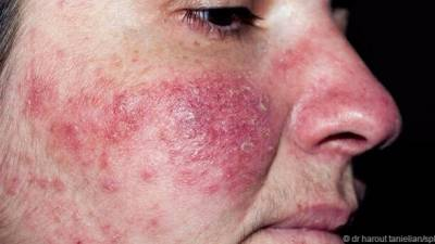 這些東西在臉上有數千隻!太可怕了...還會在人的皮膚上產卵與排泄...!
