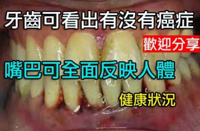 牙齒可看出你有沒有癌症淡黃色牙齒最健康