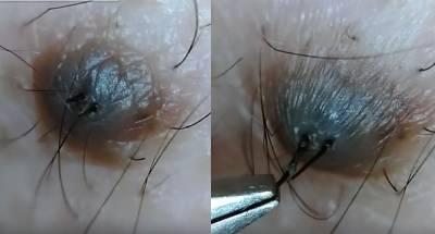 黑痣上有毛到底拔不拔?日本一網友在用鎳夾猛扯黑痣上的毛,看到最後感覺全身都痛麻了...崩潰阿!