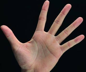 很少人知道的手診秘密!只要握緊拳頭30秒,就知道你有哪些病,超簡單!快跟朋友分享吧!
